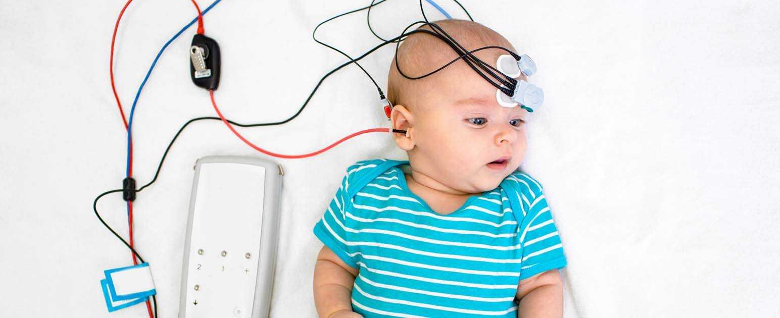 کم شنوایی در نوزادان
