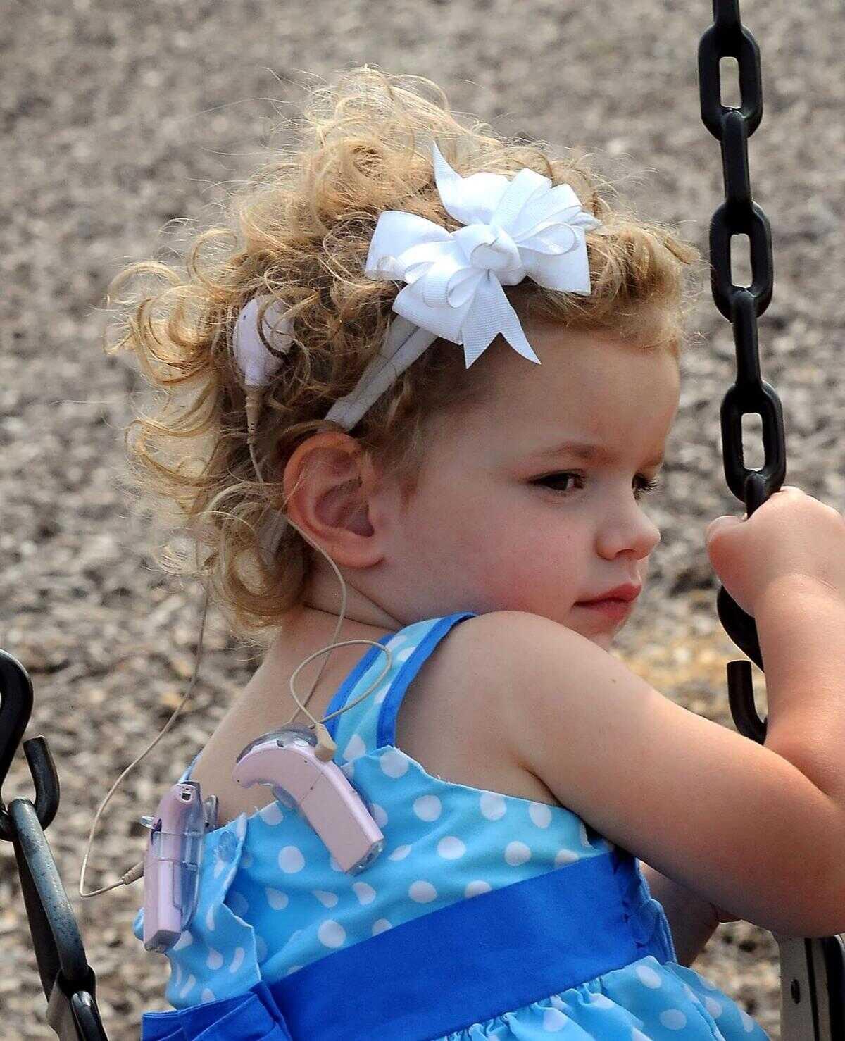 کاشت حلزون در کودکان
